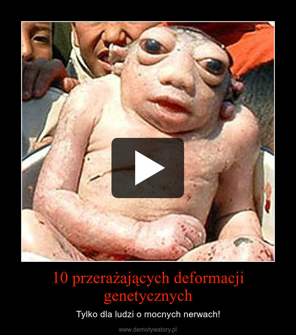 10 przerażających deformacji genetycznych – Tylko dla ludzi o mocnych nerwach!